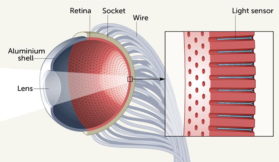 Ochi artificial (ilustrație)