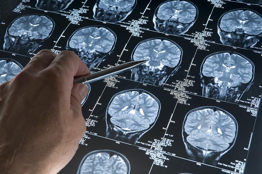 Scan creier Alzheimer